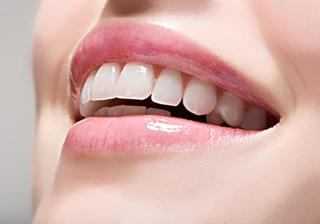 士林悅庭牙醫牙齒美白