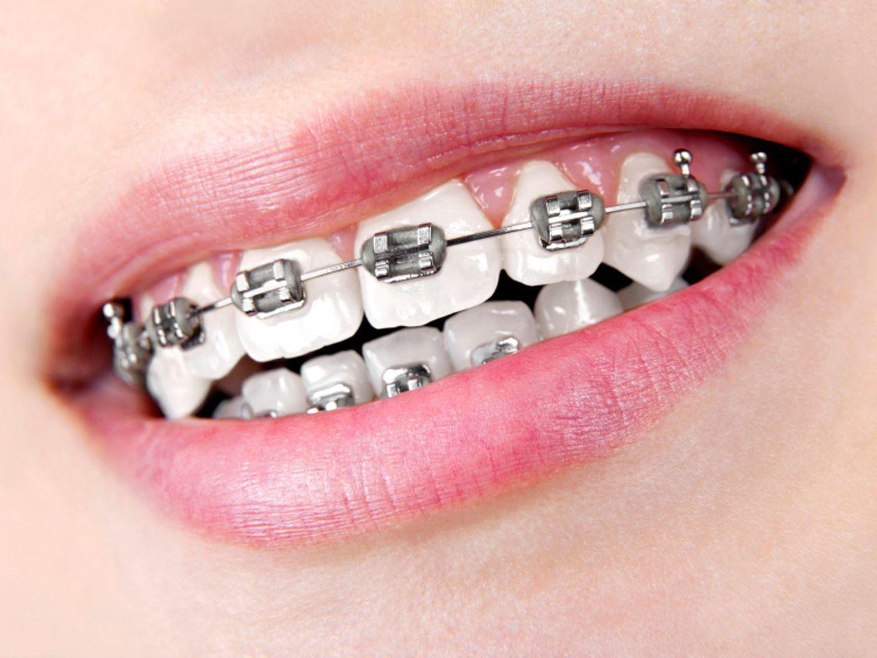 咬合不正-矯正療程-牙齒矯正牙套-常見的傳統矯正方式