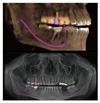 台北植牙-數位植牙-導引式植牙-3D虛擬實境化植牙技術