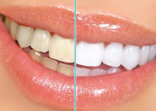 什麼是瓷牙貼片?