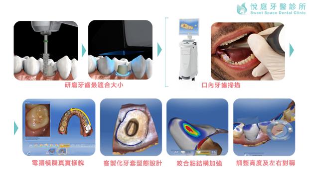 全瓷牙冠製作流程-1