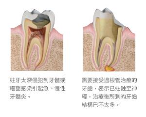 根管治療-蛀牙-全瓷冠-全瓷牙冠-全瓷冠假牙-台北-悅庭牙醫
