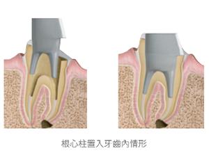 根心柱-根管治療-蛀牙-全瓷冠-全瓷牙冠-全瓷冠假牙-台北-悅庭牙醫