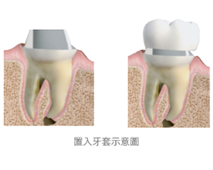 牙套-根管治療-蛀牙-全瓷冠-全瓷牙冠-全瓷冠假牙-台北-悅庭牙醫