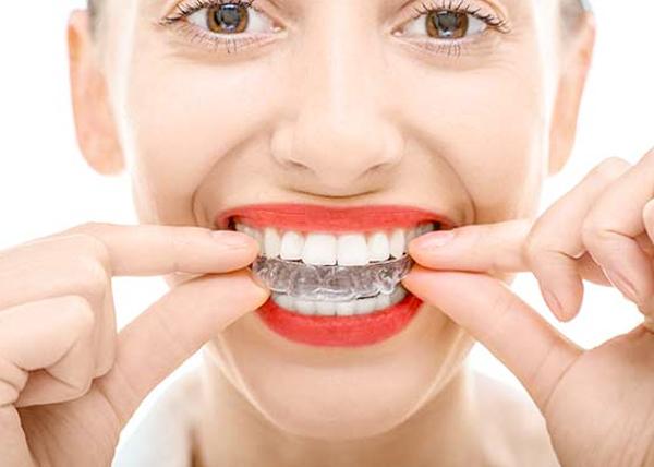 牙齒矯正暑假潮 隱形矯正遠遊不擔心