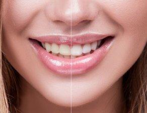 牙齒變黃成因多 冷光美白誰不適合?