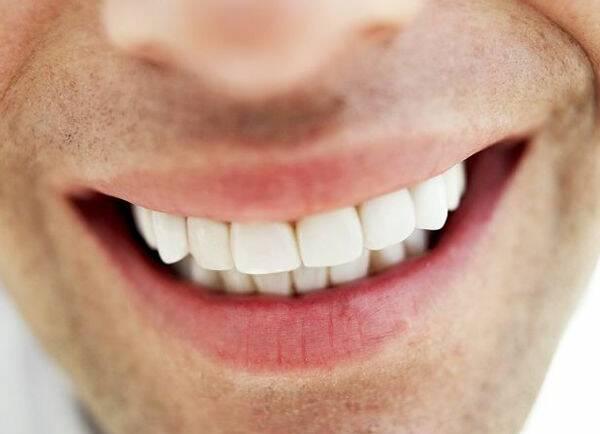 牙齒矯正停看聽 牙齦肥厚先切除