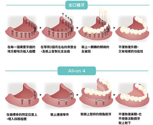 「All-on-4 全口速定植牙」讓您重建微笑曲線!
