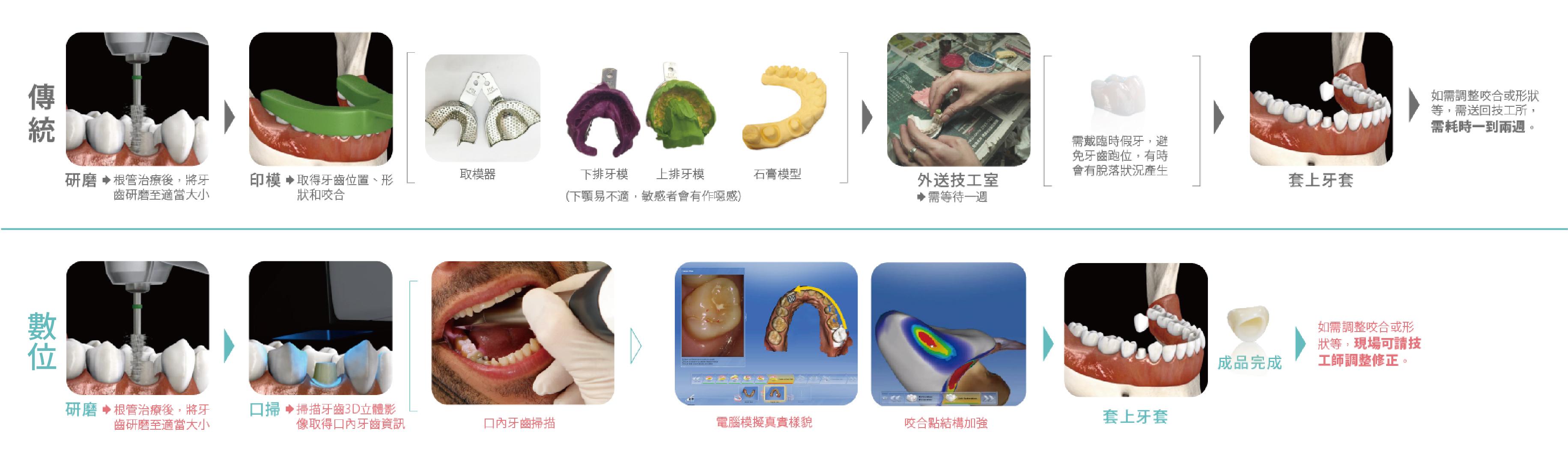 全瓷冠價格-數位全瓷冠與傳統瓷牙牙套的製作流程比較