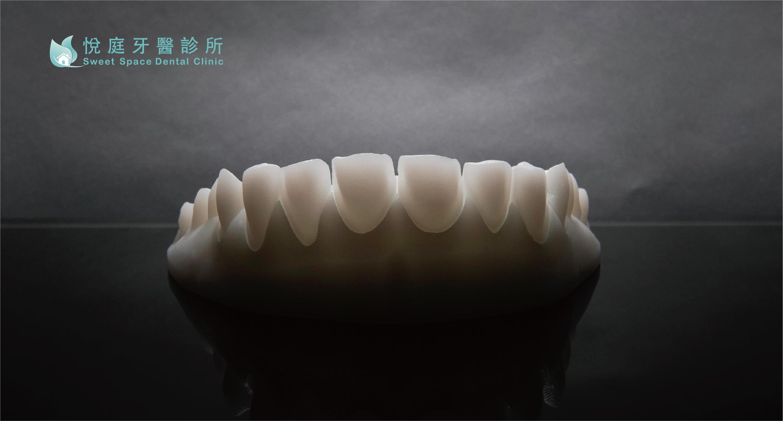 全瓷冠價格-悅庭牙醫所製做的全瓷冠模型
