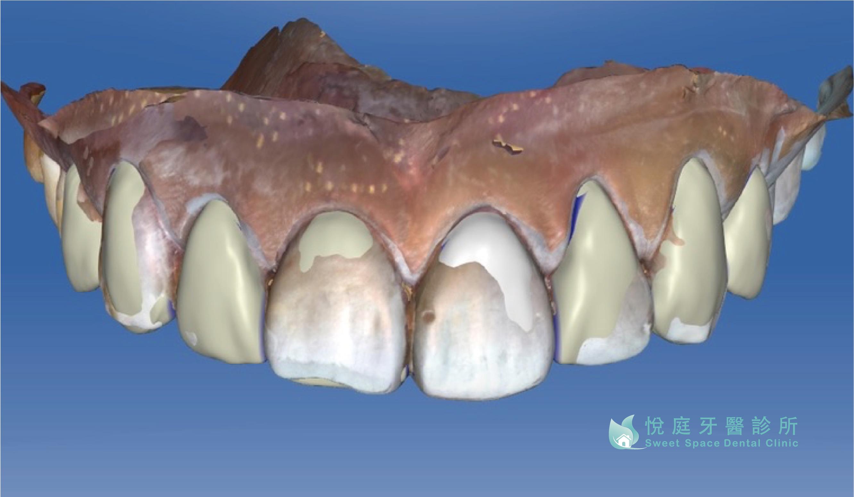 全瓷冠價格-悅庭牙醫採用德國數位掃描儀器取代傳統印模