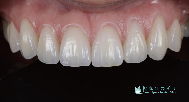 全瓷冠價格-全瓷冠療程後的上排前牙