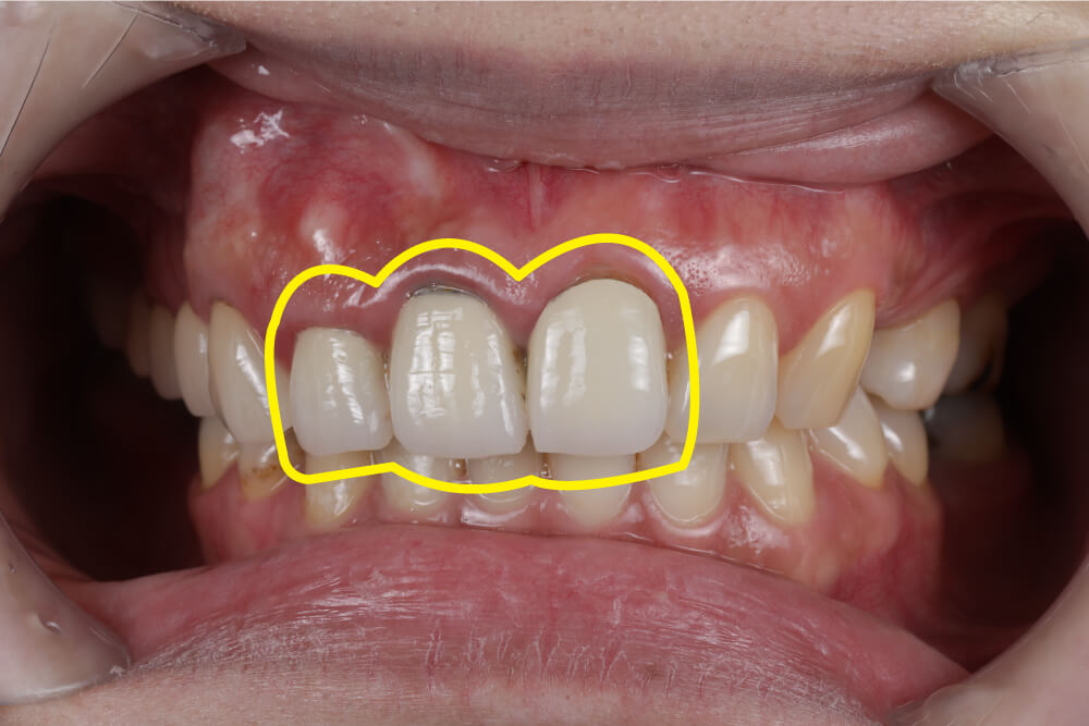 3D導引式植牙結合全瓷冠案例-舊有門牙牙橋出現金屬黑邊
