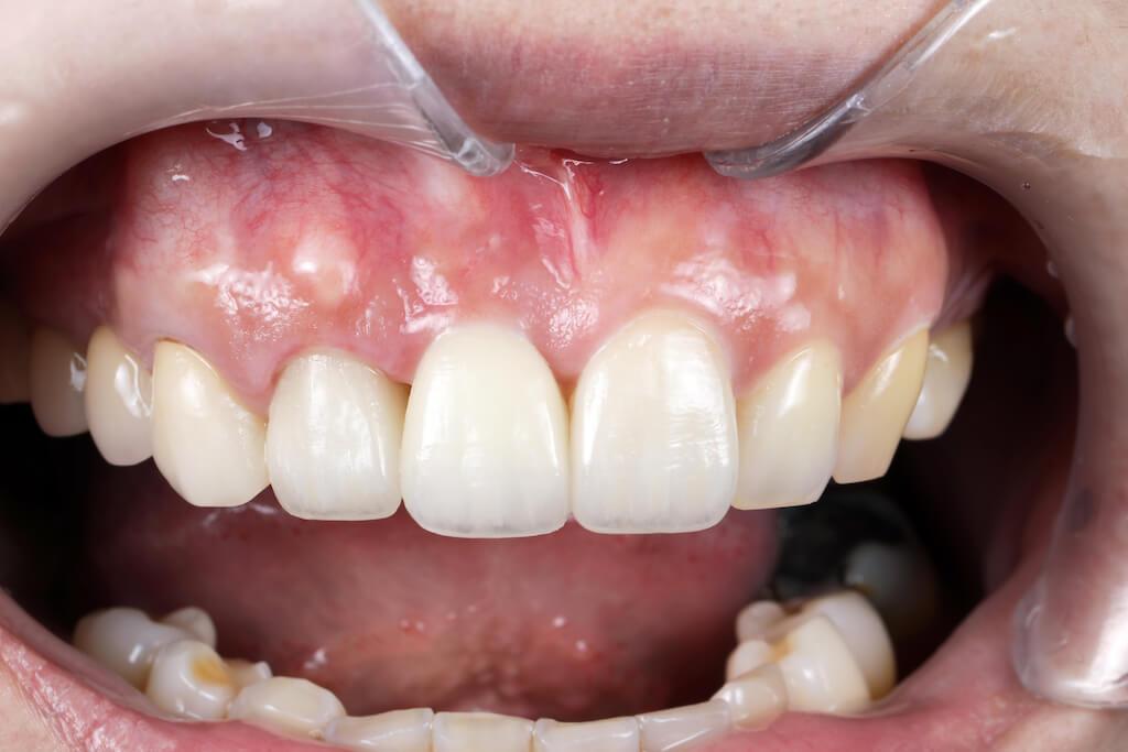3D導引式植牙結合全瓷冠案例-裝上雪曜全瓷冠完工照-前牙