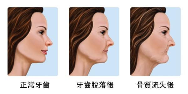 缺牙不補-骨質流失-缺牙治療推薦台北士林悅庭牙醫診所