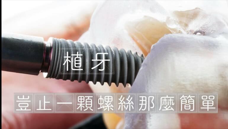 植牙價格為何這麼亂?是否有一個規範及標準?影響植牙價格的七大因素