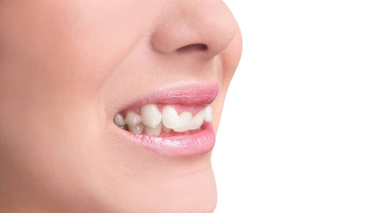 咬合不正怎麼辦?牙齒不整齊原因、症狀和牙齒矯正方式