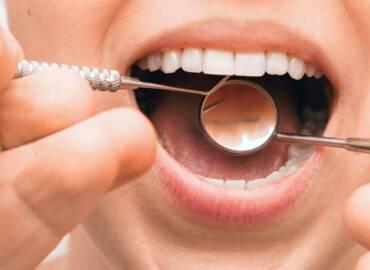 嚴重牙周病治療後,牙齦萎縮、牙縫大的改善方法