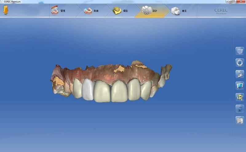 導引式植牙-全瓷冠流程-全瓷冠假牙3D模擬設計圖-上排牙齒-悅庭牙醫-台北植牙