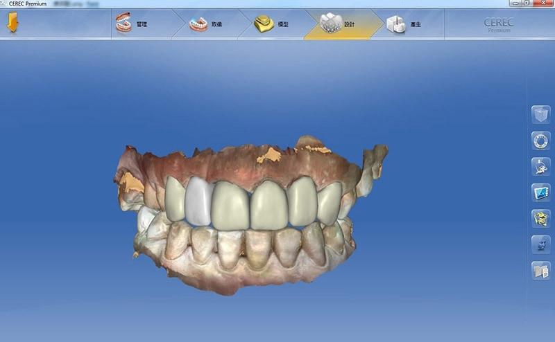 導引式植牙-全瓷冠流程-全瓷冠假牙3D模擬設計圖-前牙牙齒咬合-悅庭牙醫-台北植牙