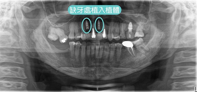導引式植牙-全瓷冠-植入植體-環口X光片-悅庭牙醫-台北植牙