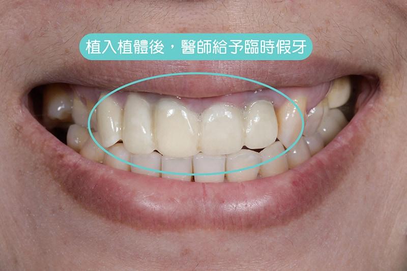 導引式植牙-全瓷冠-植入植體-臨時假牙-悅庭牙醫-台北植牙