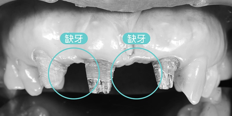 導引式植牙-全瓷冠-牙橋拆除-門牙缺牙-悅庭牙醫-台北植牙