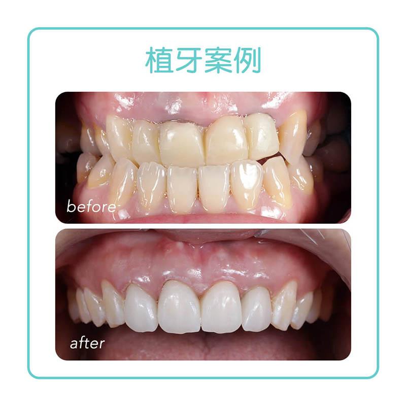 擺脫不美觀的牙橋,導引式植牙搭配全瓷冠門牙美觀又耐用