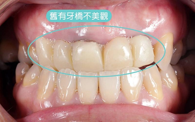 導引式植牙-植牙前-舊門牙牙橋-悅庭牙醫-台北植牙