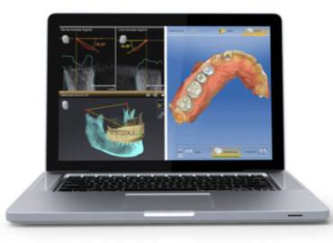 做假牙不用一直跑醫院!數位牙科「精準醫療」為做牙齒提供全新選擇