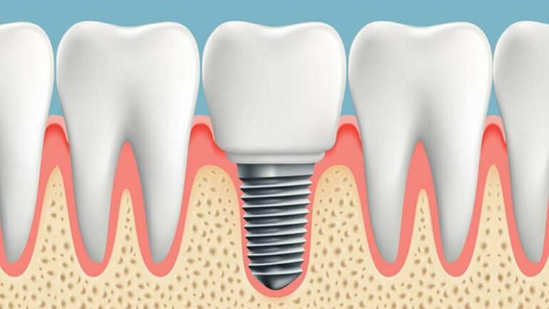 流程與後遺症,植牙前需要了解的事