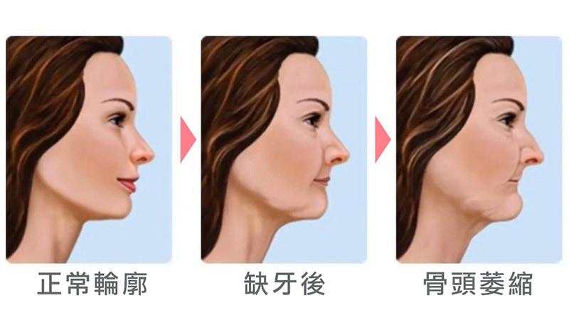 植牙流程-植牙後遺症-缺牙不補影響-臉型變化-悅庭牙醫-台北
