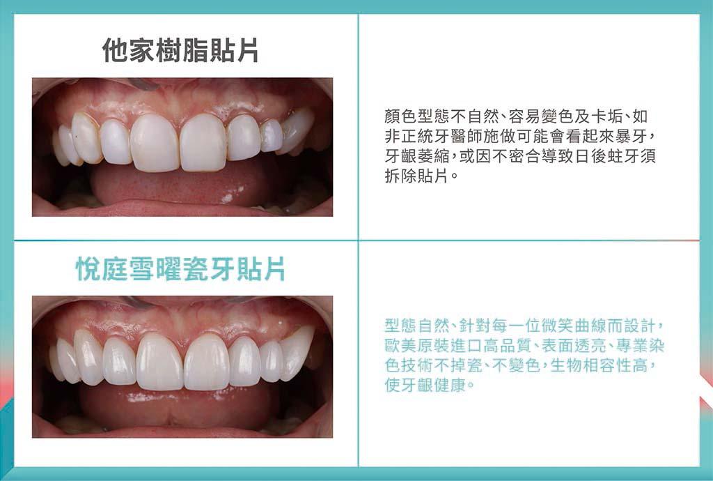 樹脂貼片-瓷牙貼片-比較-台北陶瓷貼片-悅庭牙醫
