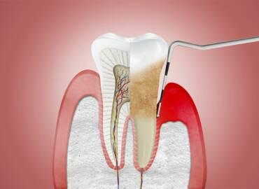 牙周病如何治療和預防?牙周病原因、費用和治療方式一次看
