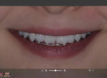瓷牙貼片適合我嗎?專業醫師詳解瓷牙貼片大小事