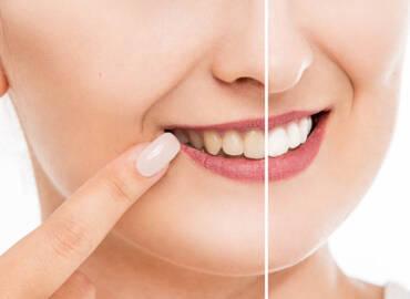 樹脂貼片是什麼?和瓷牙貼片相比有什麼後遺症?