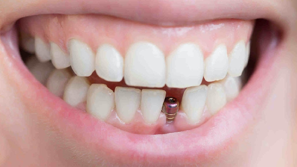 缺牙怎麼辦?該植牙嗎?缺牙後遺症及植牙相關Q&A