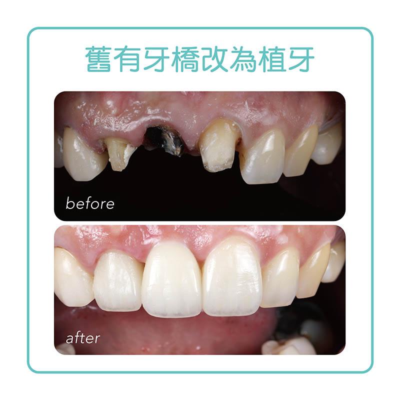 缺牙-植牙-植牙推薦案例-手術前後比較-悅庭牙醫-台北