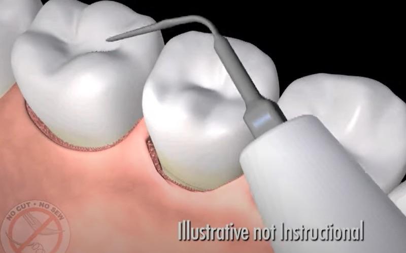 雷射牙周病-LANAP-超音波清除牙結石-牙周病治療-悅庭牙醫-牙周治療中心-台北-牙周病