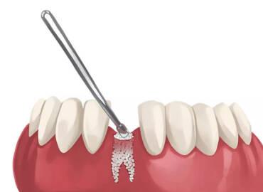 PRF搭配骨粉技術 幫你打好口腔基礎