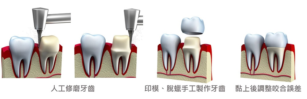 咬合重建- 傳統咬合重建流程-悅庭牙醫-台北