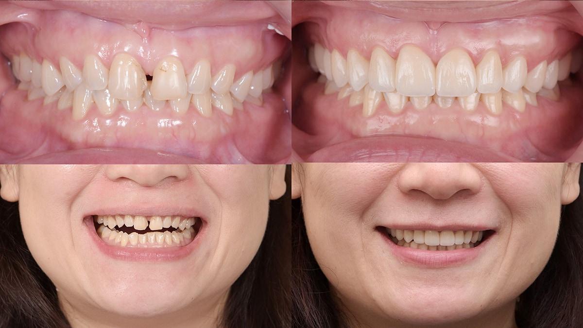 咬合重建-達文西導引式微創咬合重建-治療前後比較-悅庭牙醫-台北牙醫推薦