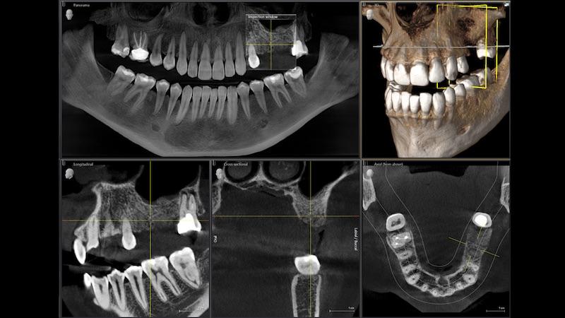 植牙補骨-上顎竇增高術-數位X光-斷層掃描影像-悅庭牙醫-台北