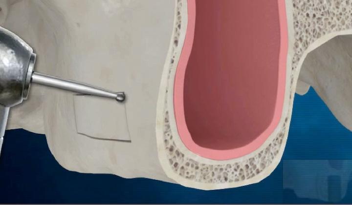 植牙補骨-上顎竇增高術-骨鑿增高術-手術前-悅庭牙醫-台北.jpg