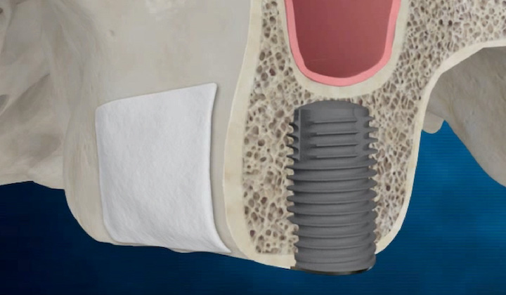 植牙補骨-上顎竇增高術-骨鑿增高術-手術補骨後再植入植體-悅庭牙醫-台北.jpg