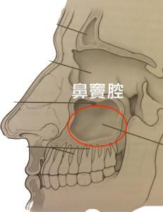植牙補骨-上顎竇增高術-鼻竇腔位置示意圖-悅庭牙醫-台北