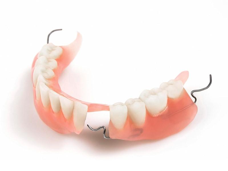 活動假牙-假牙種類-局部活動式假牙-金屬支架-悅庭牙醫-台北牙醫推薦