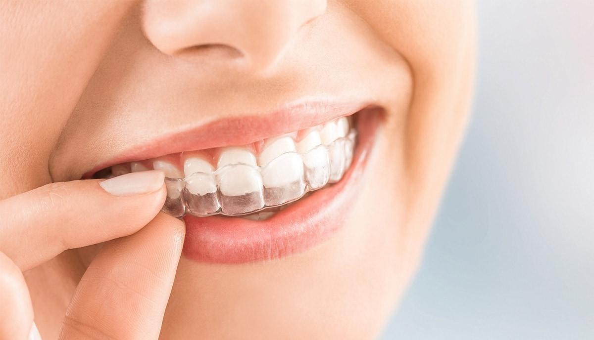 磨牙-咀嚼肌治療-防磨牙軟式咬合板-悅庭牙醫-台北牙醫推薦