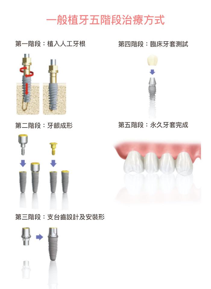 老人植牙-銀髮族-植牙流程-悅庭牙醫-台北