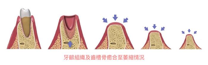 老人植牙-銀髮族-牙齦組織及齒槽骨癒合至萎縮情況-悅庭牙醫-台北
